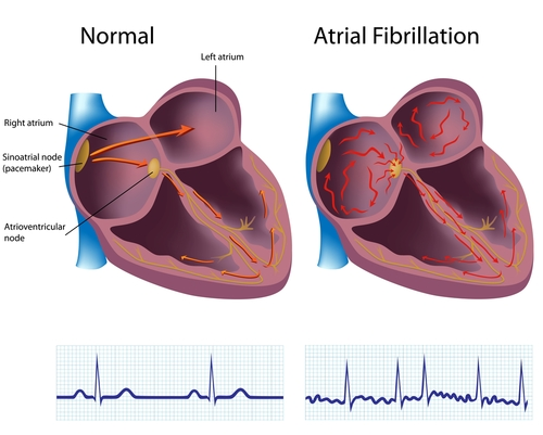 Medical Science Notes – On – Atrial Fibrillation – For W.B.C.S. Examination.