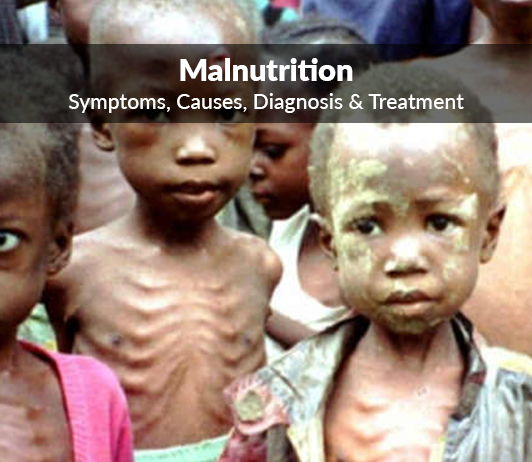 Essay Composition On – Malnutrition – For W.B.C.S. Examination.