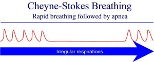 W.B.C.S. Examination Notes On – Cheyne Stokes Breathing – Animal Husbandry And Veterinary Sciences Notes.